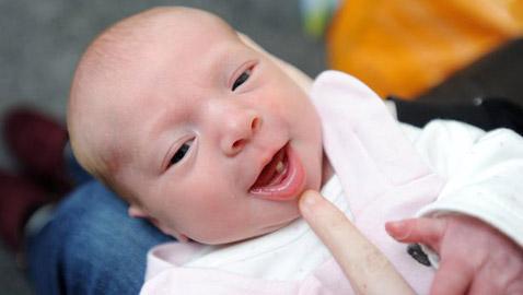 صور غريبة.. ولادة طفلة وفي فمها سن