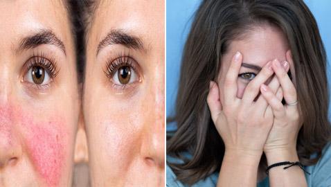 إليكم 11 طريقة للتخلص من مشكلة احمرار الوجه في المواقف المحرجة!